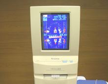 咬合力測定システム(Occluzer)