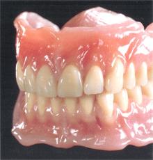 義歯 入れ歯